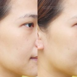 AskMeWhats_Nikki Tiu_beauty Blogger_philippine makeup artist_sampleroom_Clinique Even Better Moisturizer before and after