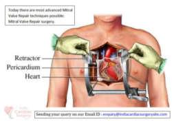 mirtal-valve-replacement-surgery
