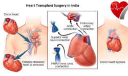 mcdc_heart-transplant-surgery-8col copy