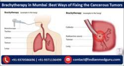 Brachytherapy in Mumbai Best Ways of Fixing the Cancerous Tumors