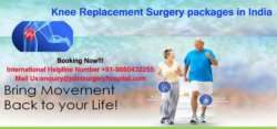 Knee Replacement Surgery packages in India 1